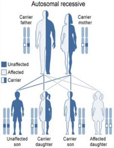 Autosomal recessive Waardenburg syndrome picture